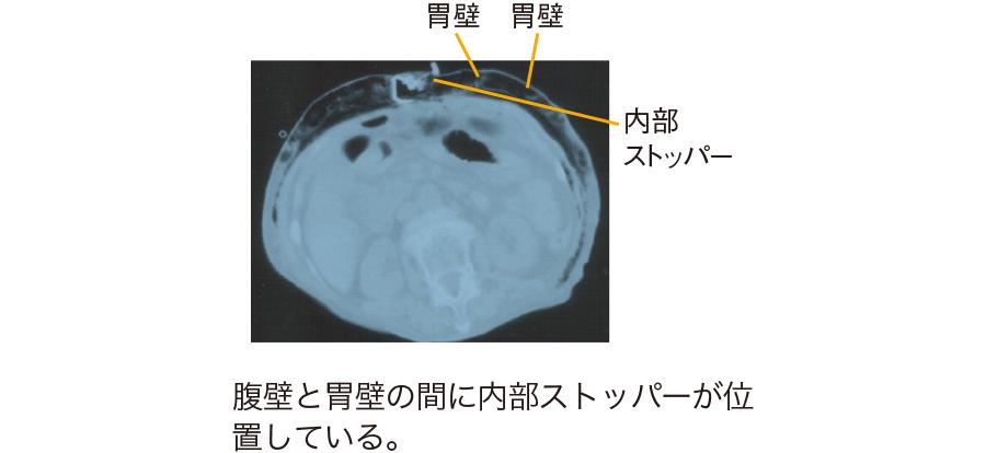 腹部CT所見