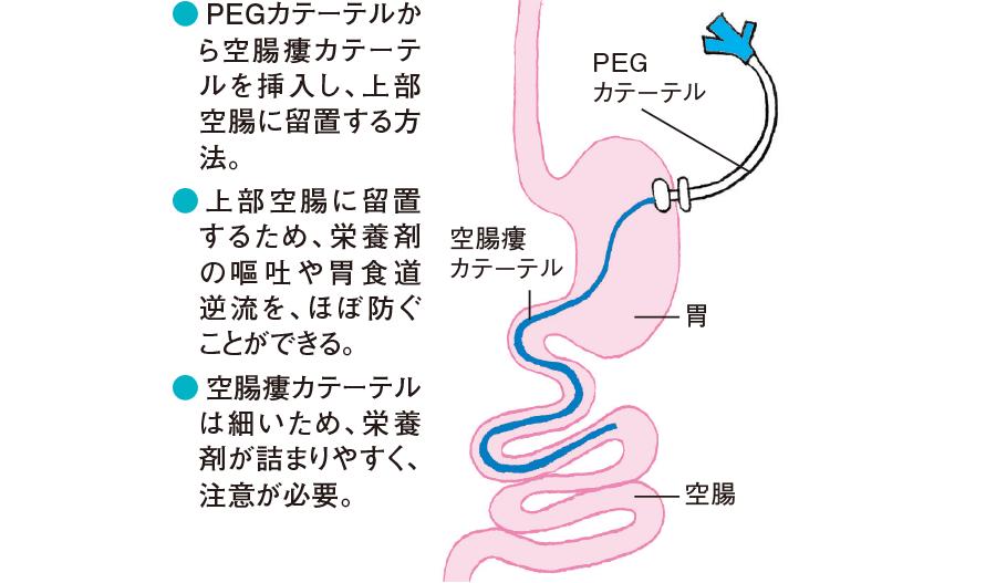 経皮内視鏡的空腸瘻(PEG-J)