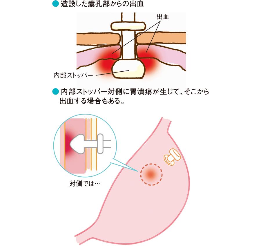 胃瘻造設後の出血(胃内)