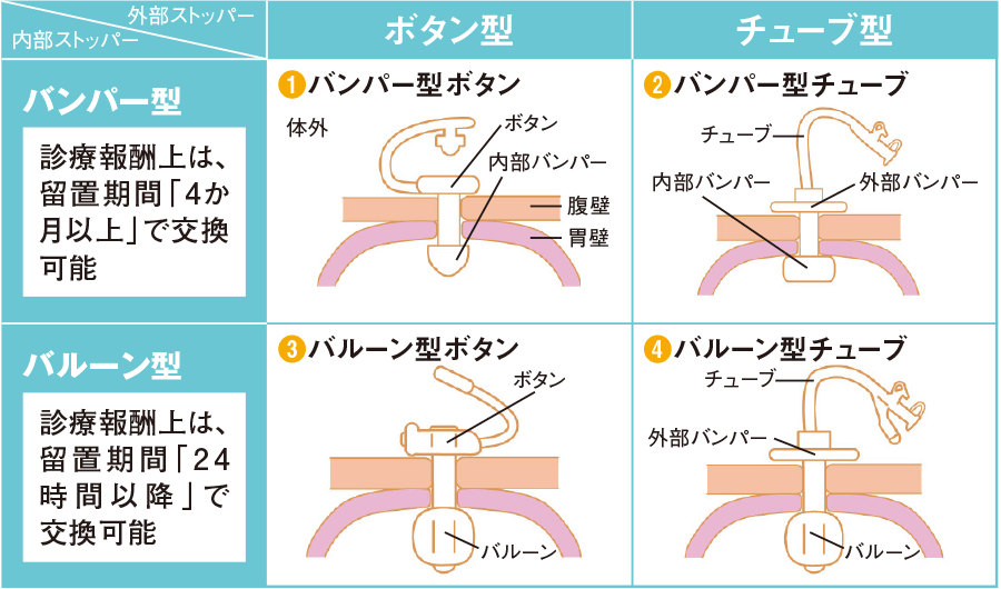 PEGカテーテルの種類と交換頻度