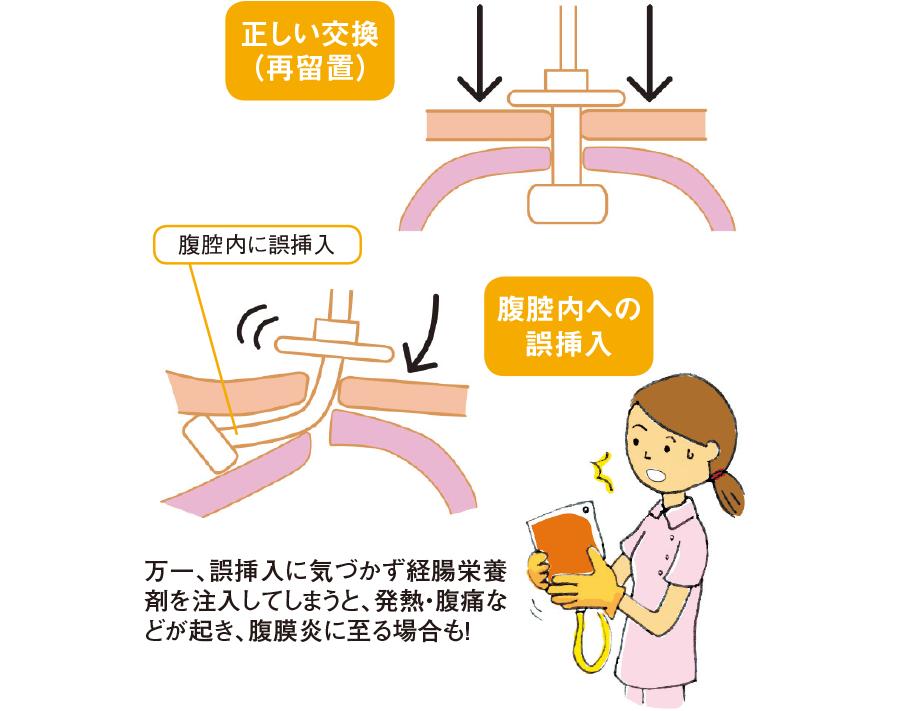 交換時における腹腔内誤挿入