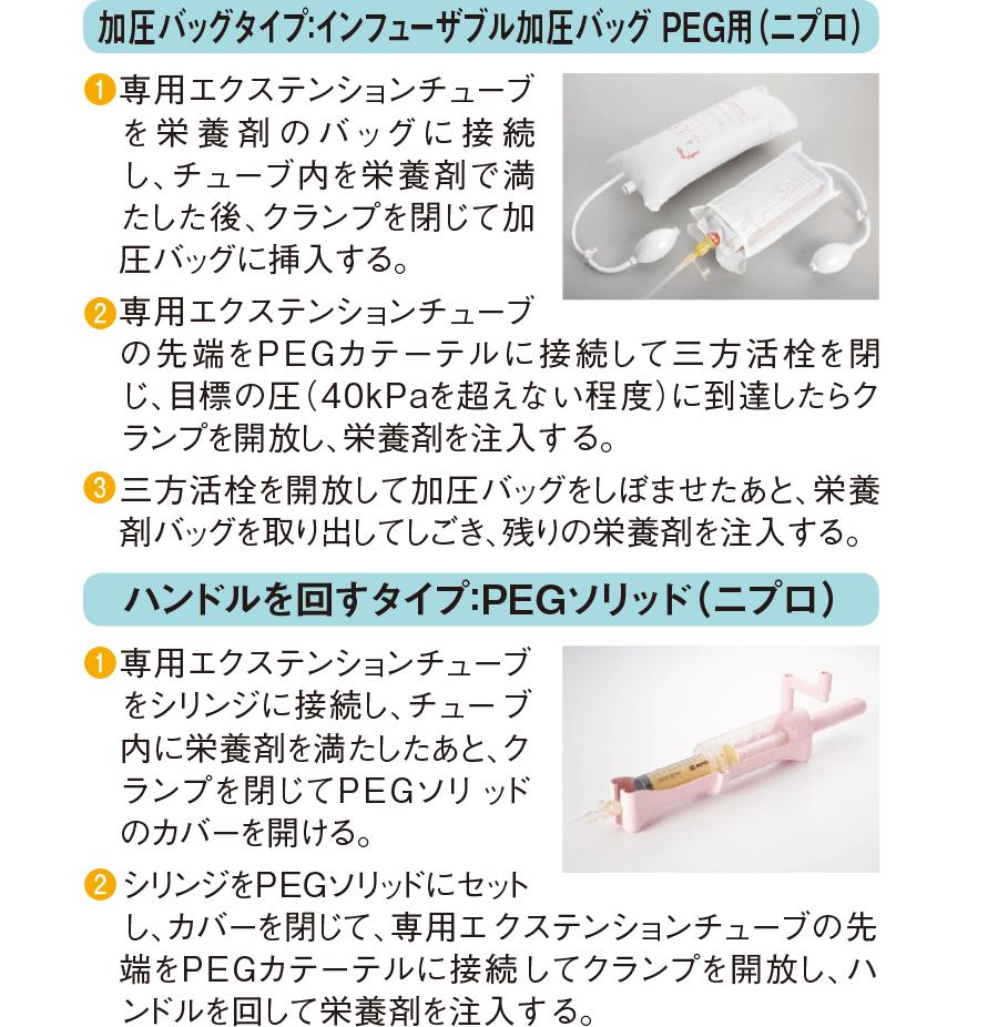 注入時の圧を調節する装置