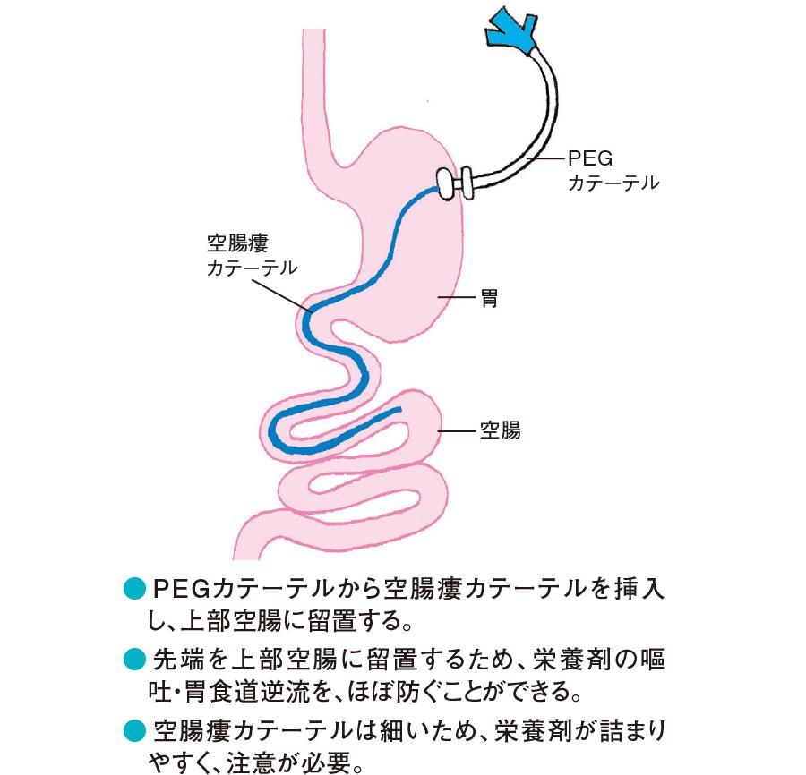 経胃瘻的空腸瘻(PEG-J)