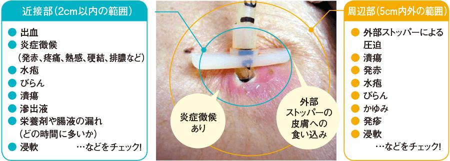 胃瘻の観察部位