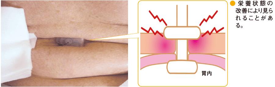 腹部脂肪層への食い込み