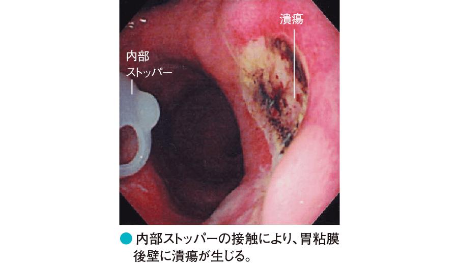 カテーテルの物理的刺激により生じた後壁側の胃潰瘍