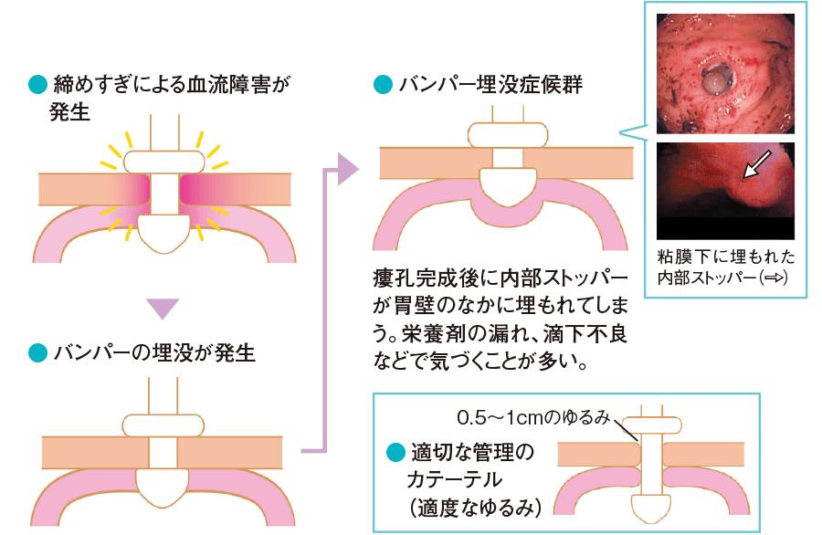 バンパー埋没症候群の発生機序