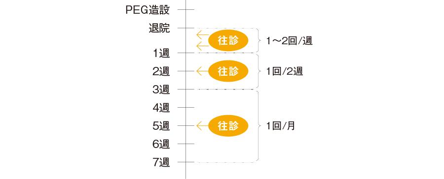 往診・訪問回数の決め方(例)