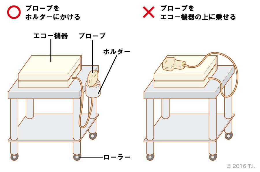エコー機器を移動する際のプローブの取り扱い方