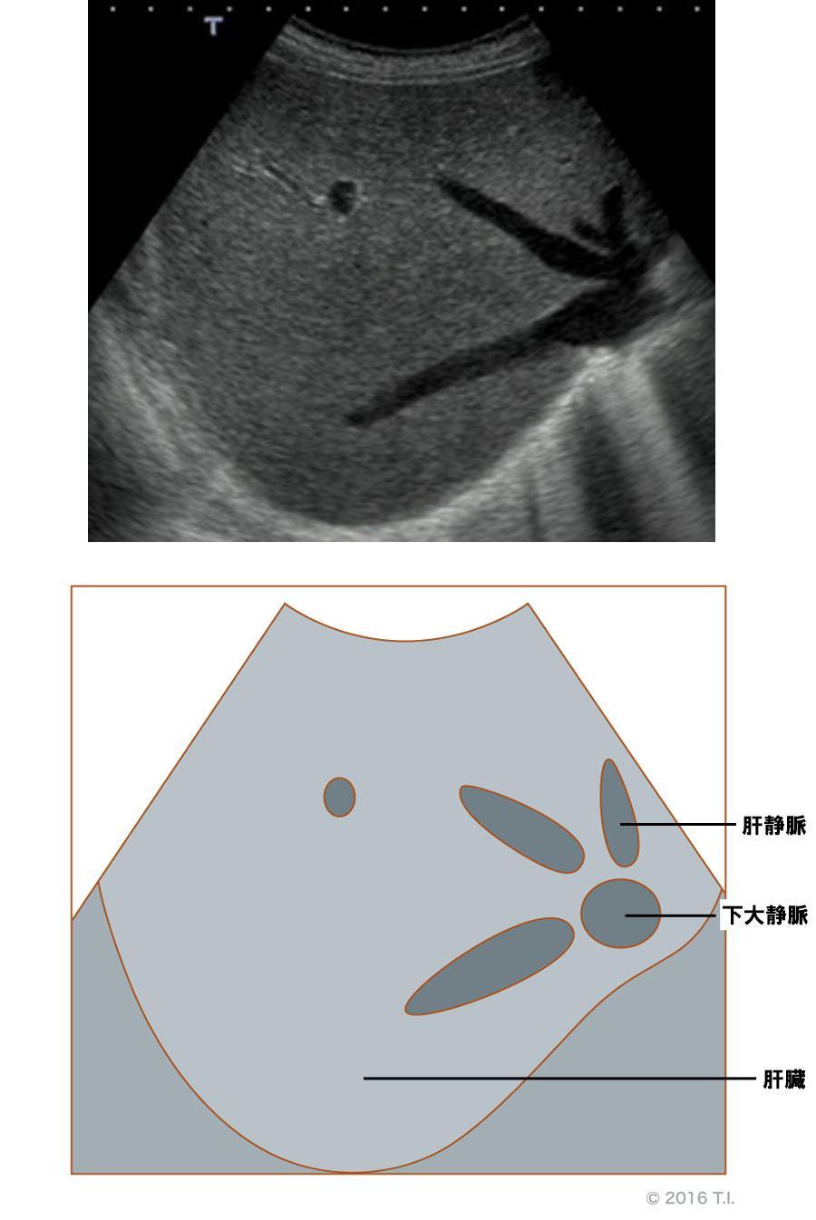 肝臓のエコー像とシェーマ像(2)