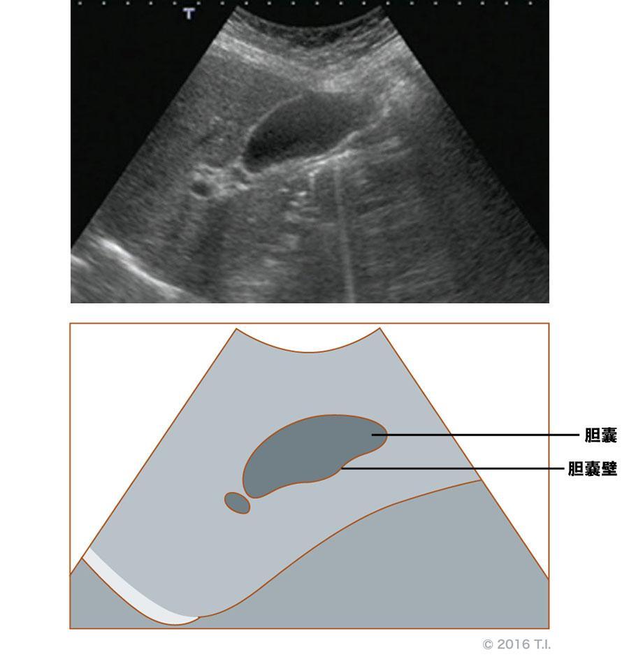 胆嚢のエコー像とシェーマ像