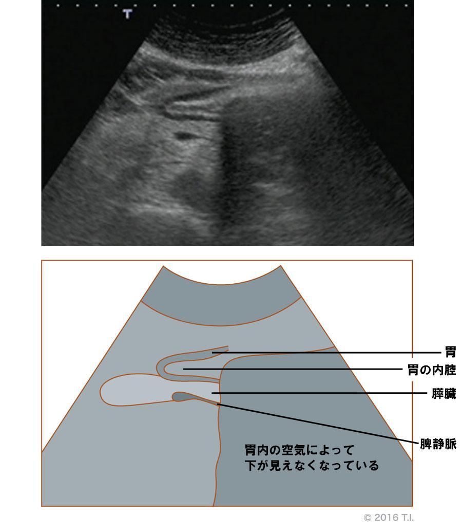 膵臓のエコー像とシェーマ像(2)