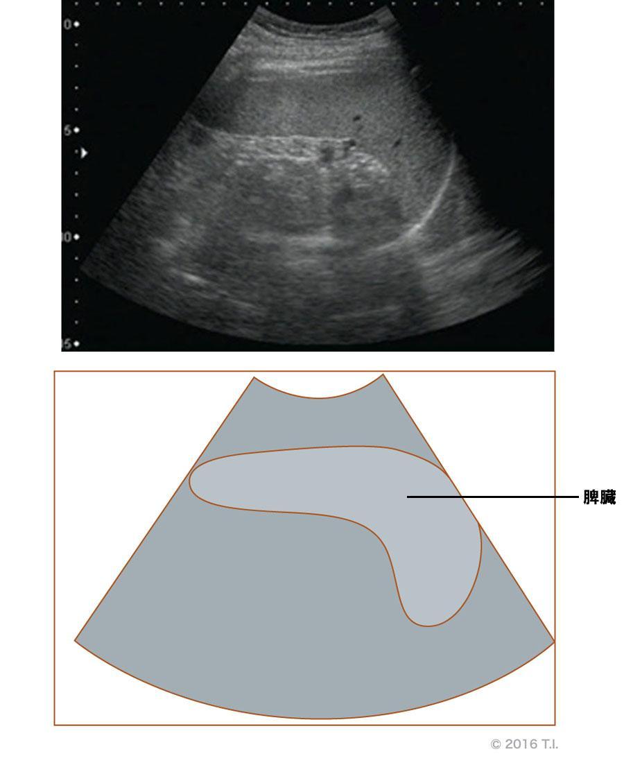 脾臓のエコー像とシェーマ像