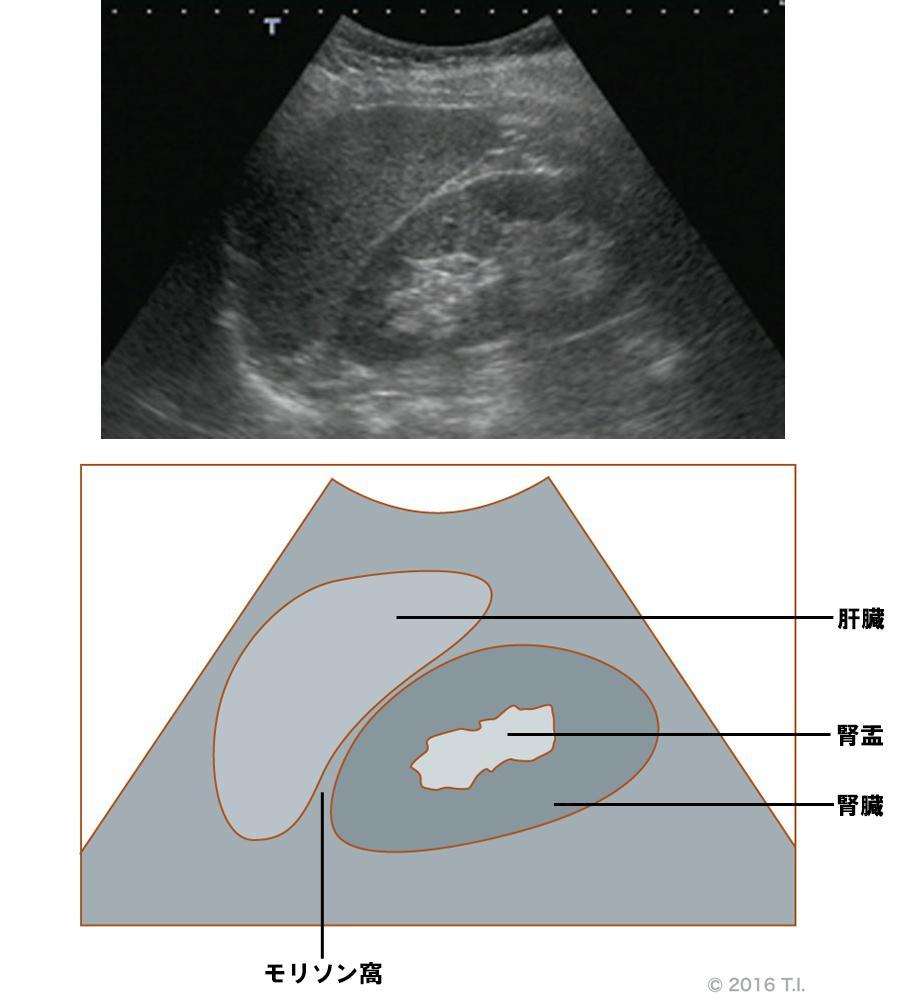 腎臓のエコー像とシェーマ像