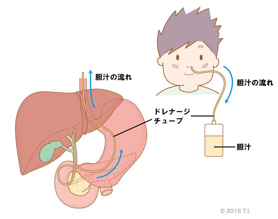 内視鏡的経鼻胆道ドレナージ(ENBD)