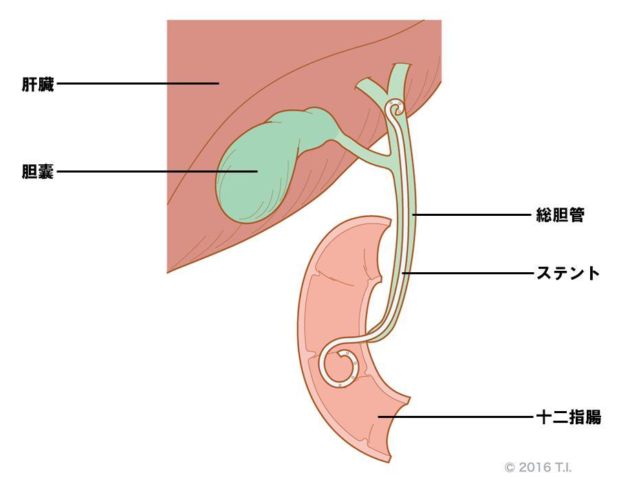 内視鏡的逆行性胆管ドレナージ
