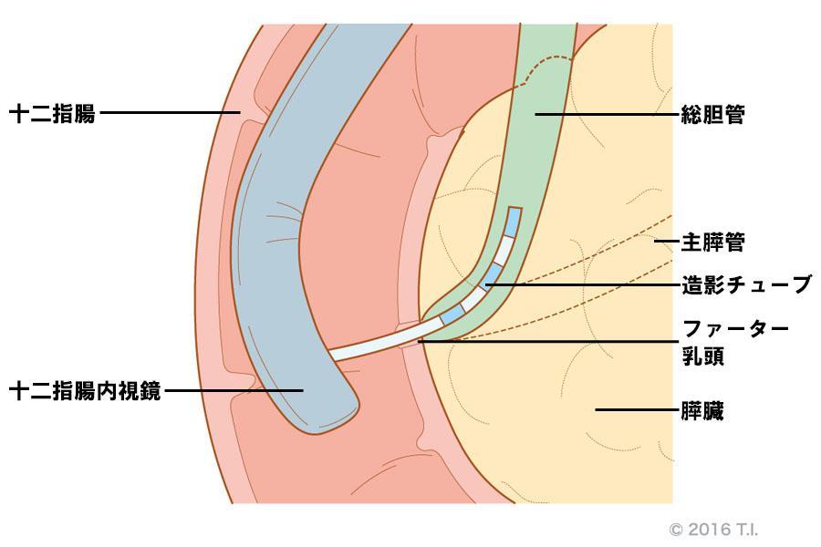 内視鏡的逆行性胆膵管造影(ERCP)
