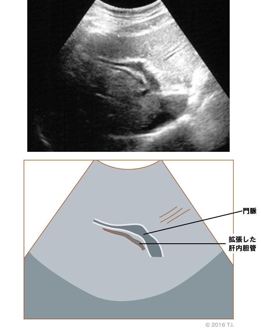 肝内胆管の拡張があるエコー像