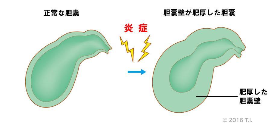炎症によって肥厚した胆嚢壁