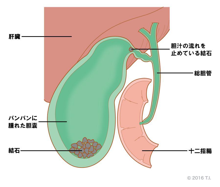 胆嚢内に詰まった胆石