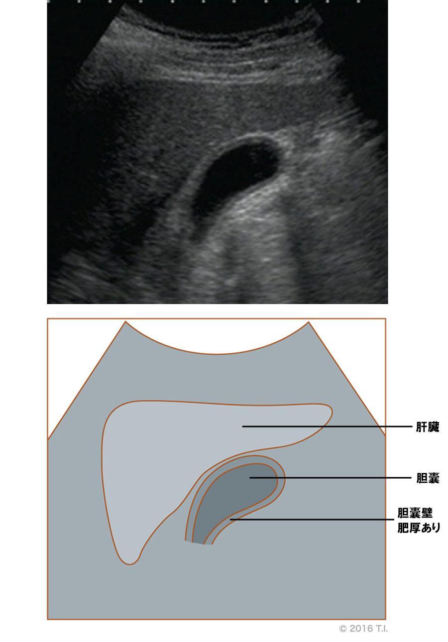 胆嚢壁が肥厚したエコー像