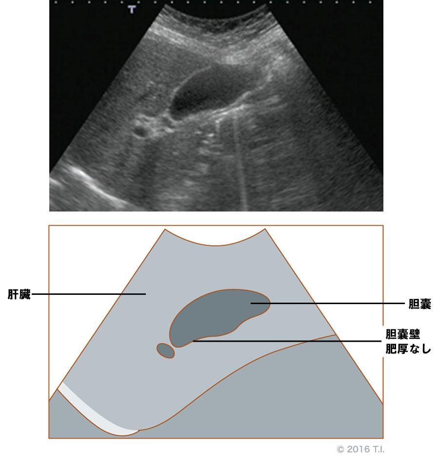 胆嚢壁が肥厚していないエコー像