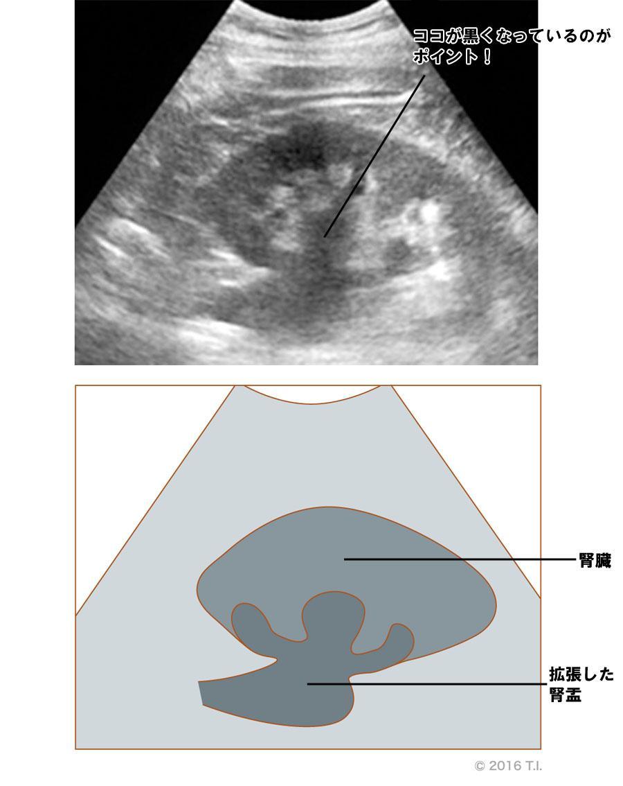 腎盂が拡張したエコー像