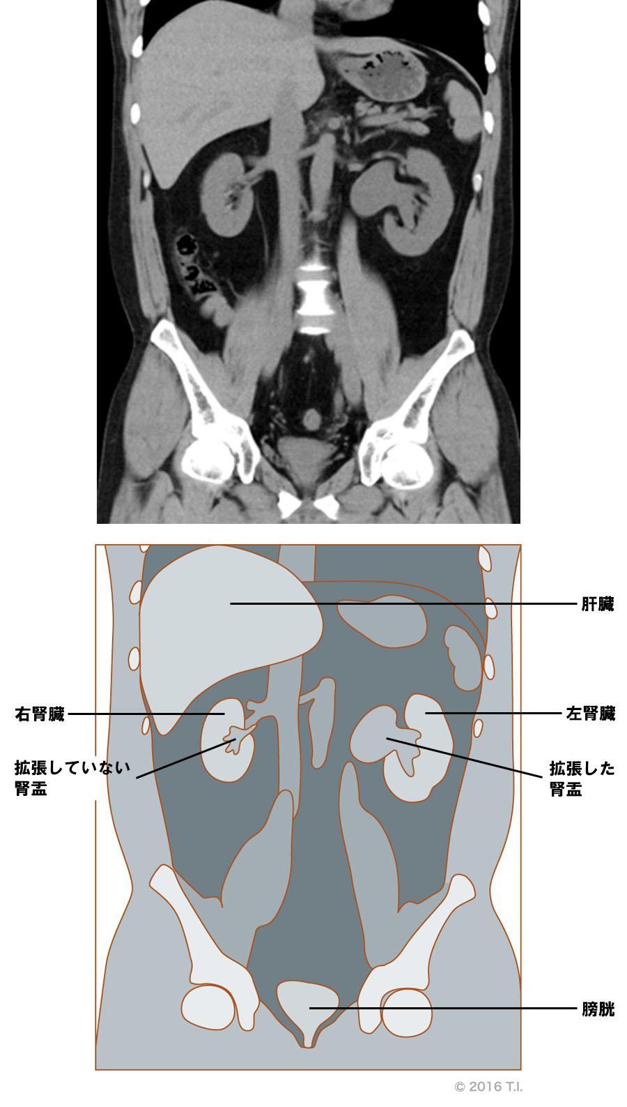 腎盂が拡張しているCT像