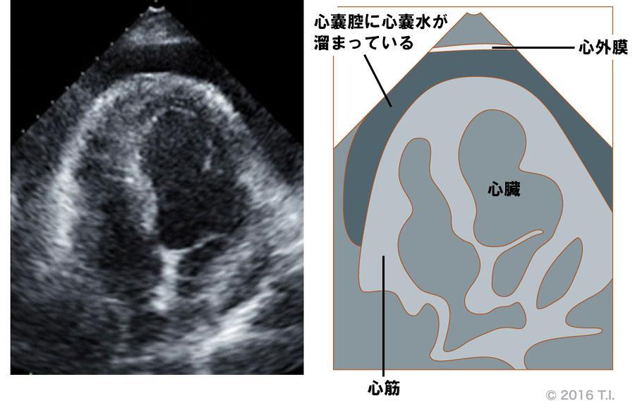 心嚢腔に液体があるエコー像(1)