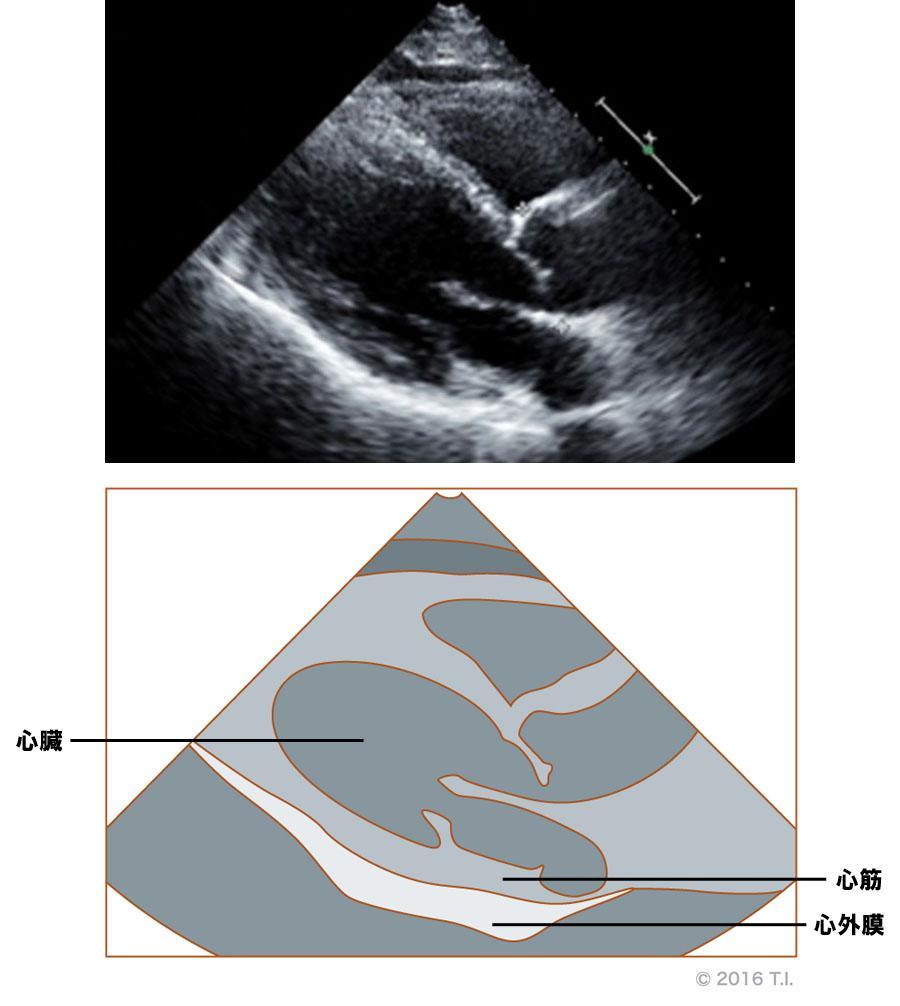 心嚢腔に液体がないエコー像(2)