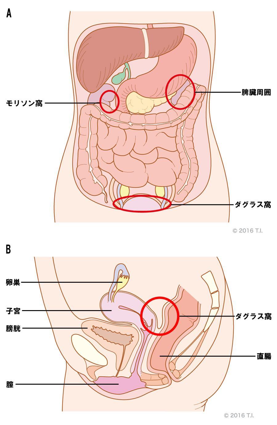 モリソン窩、脾臓周囲、ダグラス窩の位置関係