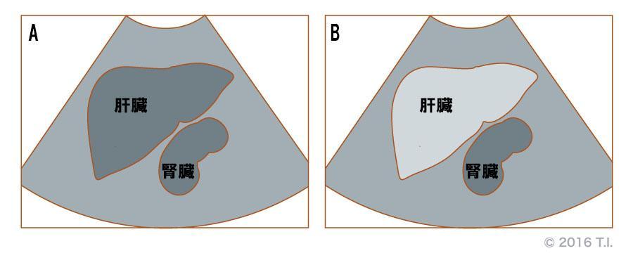肝腎コントラストのイメージ