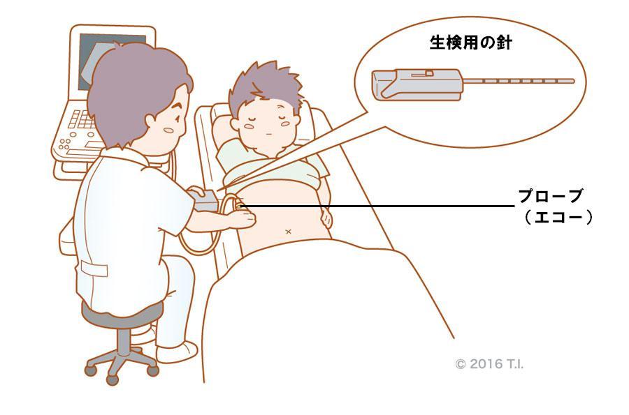 肝生検の実施