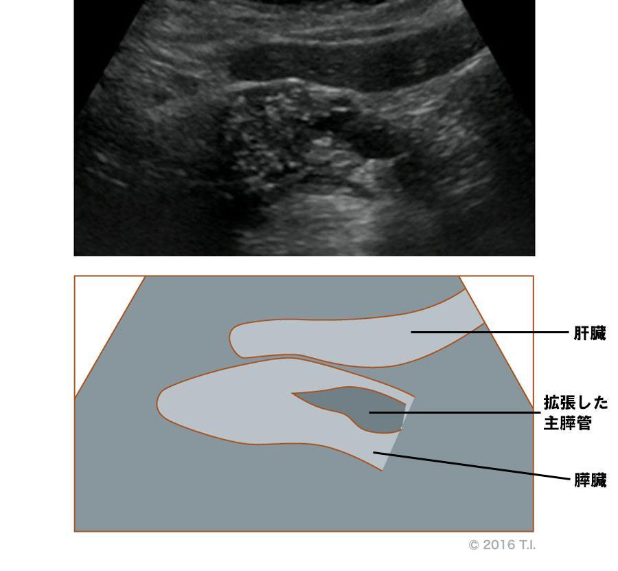 主膵管の拡張がある例