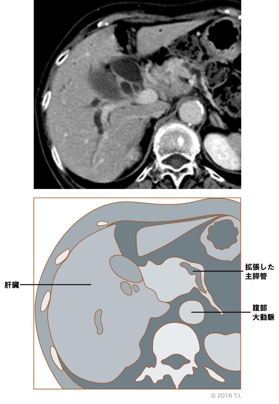 主膵管が拡張しているCT像