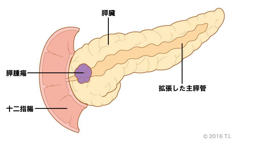 膵腫瘍によって拡張した主膵管