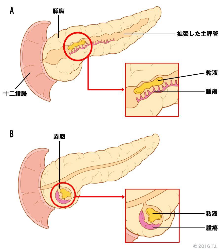 主膵管型IPMNと分枝型IPMNの違い