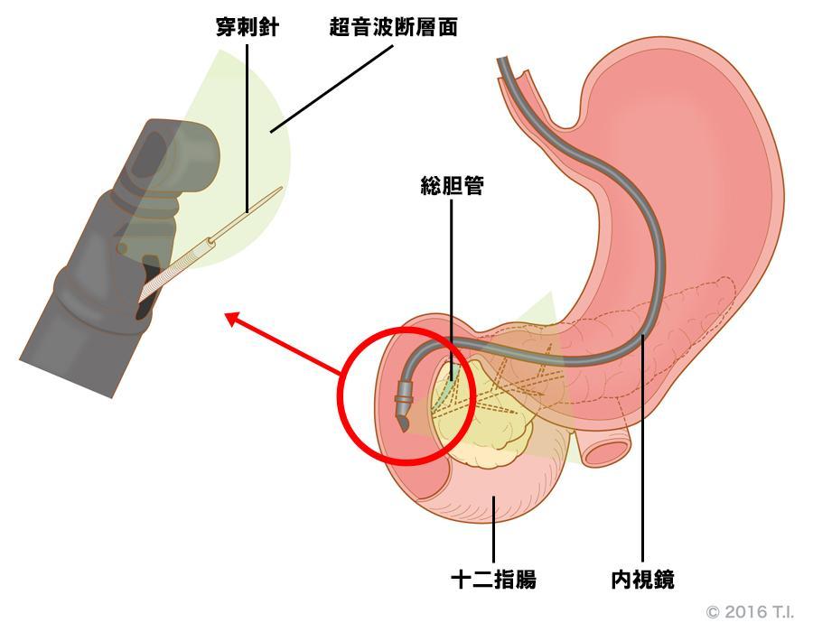 腫瘍性病変に行う超音波内視鏡下穿刺術(EUS-FNA)
