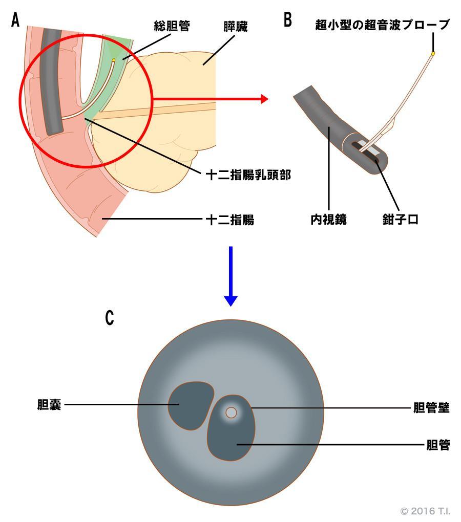 胆管内腫瘍の診断を行う管腔内超音波検査(IDUS)