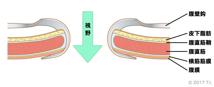 腹壁鈎の使用例