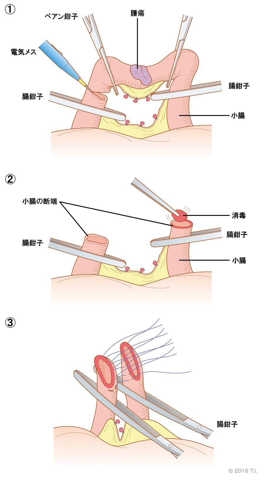 腸鉗子の使用例
