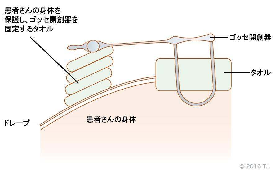 ゴッセ開創器(開腹鈎)による皮膚損傷を防止するためのコツ