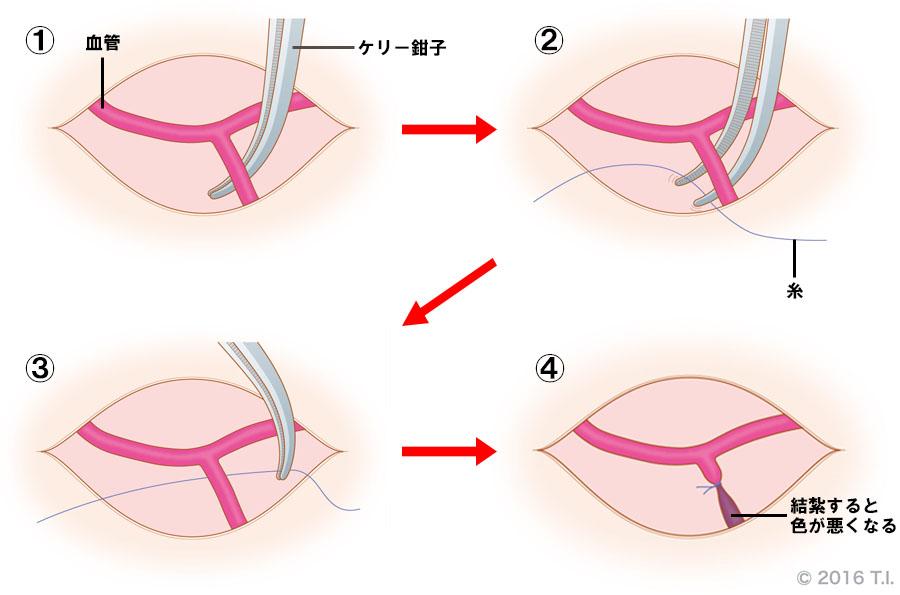 ケリー鉗子の使用例(糸通し)