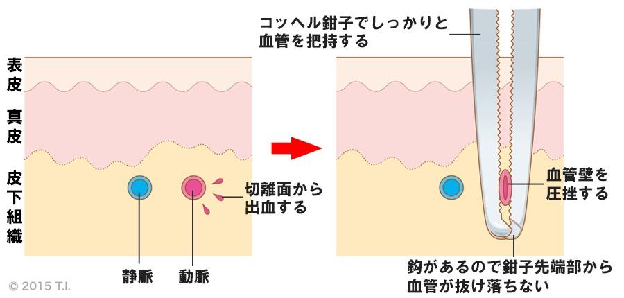 コッヘル鉗子の使用例
