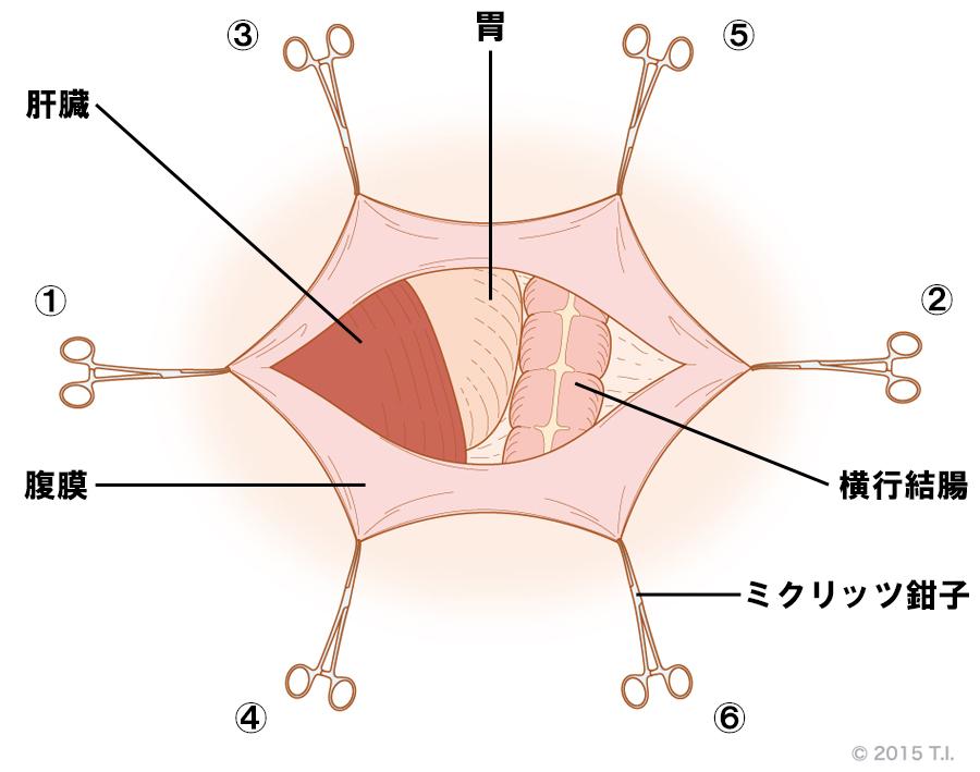 ミクリッツ鉗子の使用例