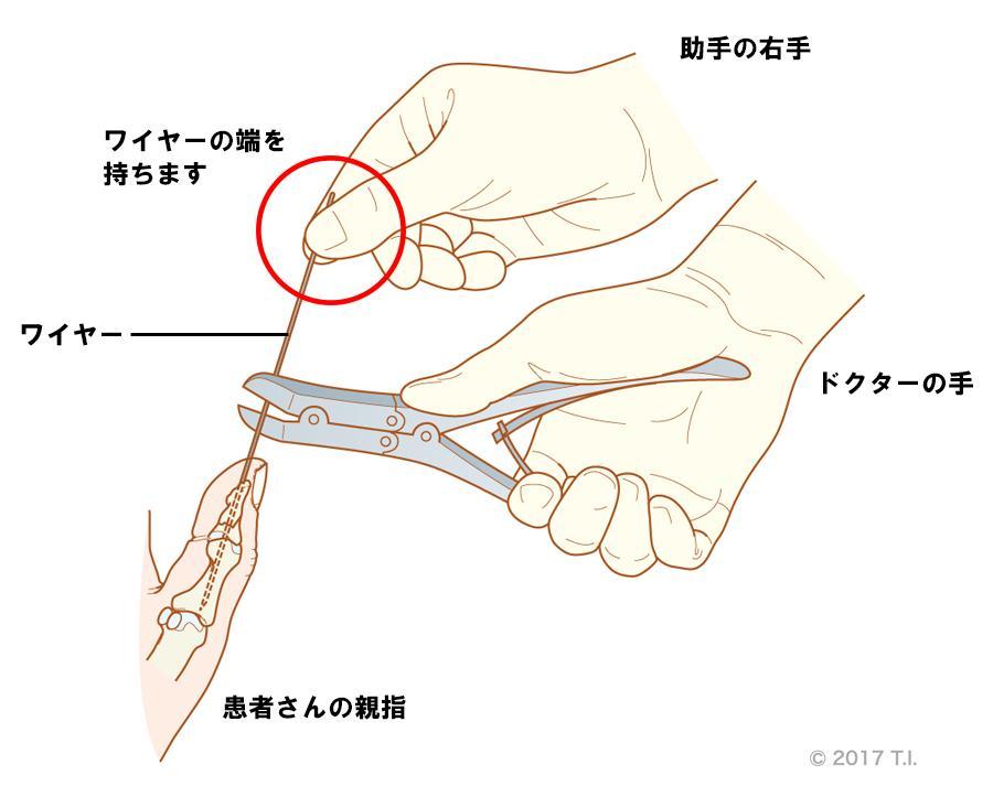 ワイヤー切断時はワイヤーの端を持つ