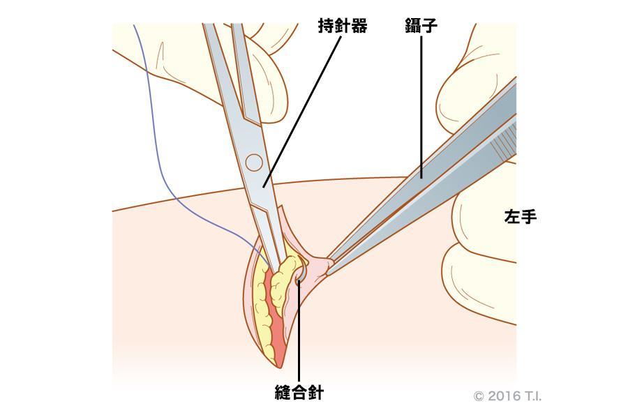皮膚縫合時の使い方