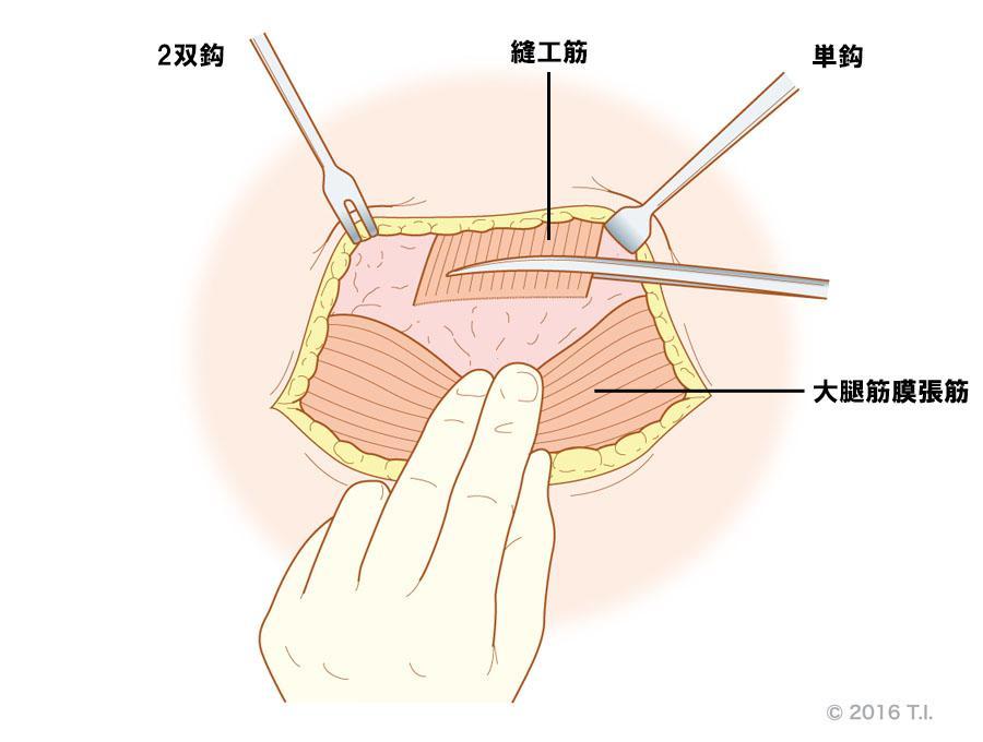 2双鈎と単鈎の使用例(縫工筋と大腿筋膜張筋間の切開)