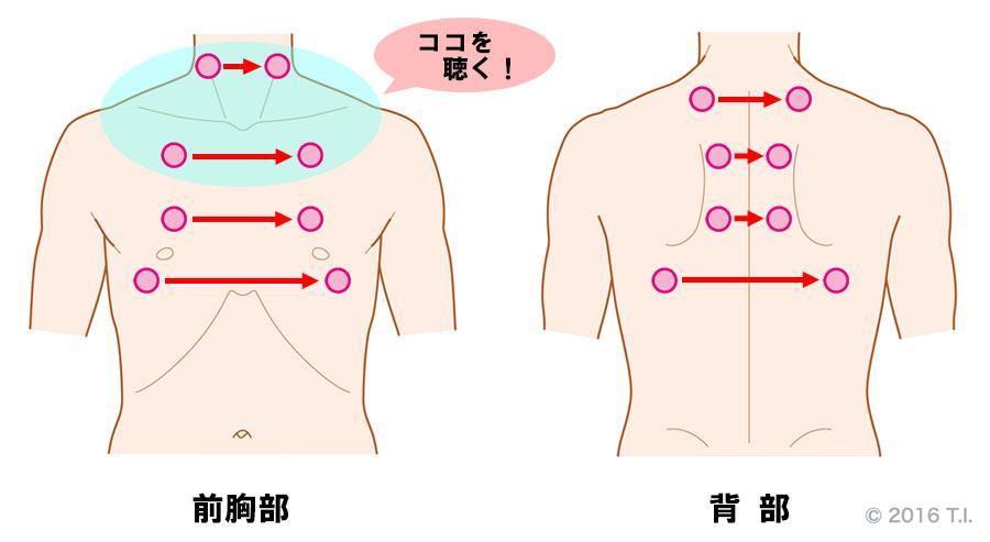 気管支喘息発作の患者さんの聴診位置