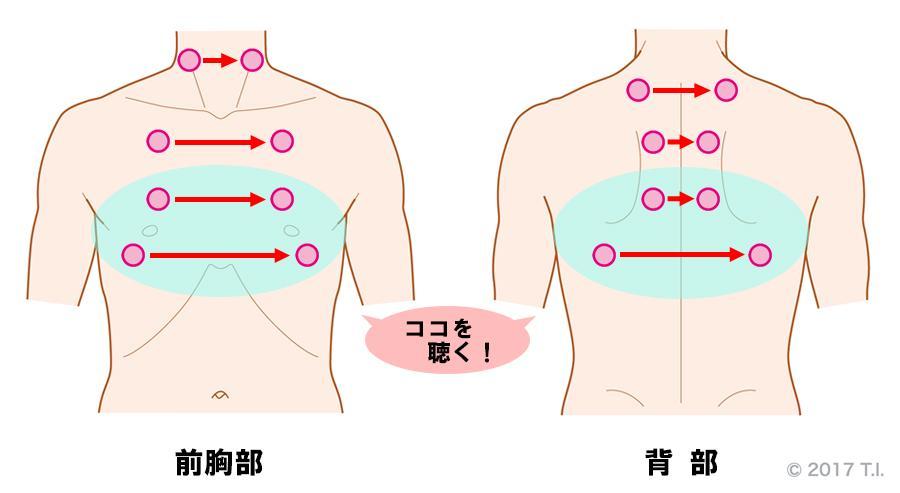 びまん性汎細気管支炎の患者さんに行うべき聴診の位置
